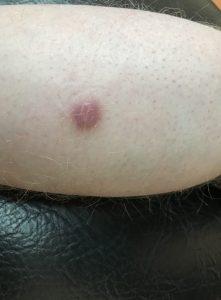 dermatolog - włókniak twardy