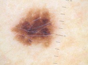 znamię barwnikowe - dermatoskopia bydgoszcz