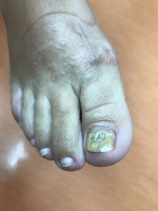 grzybica paznokcia dermatolog bydgoszcz