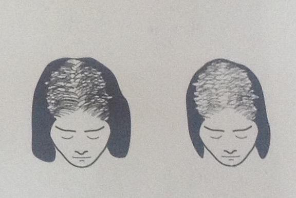 łysienie adrogenowe u kobiet cz 2