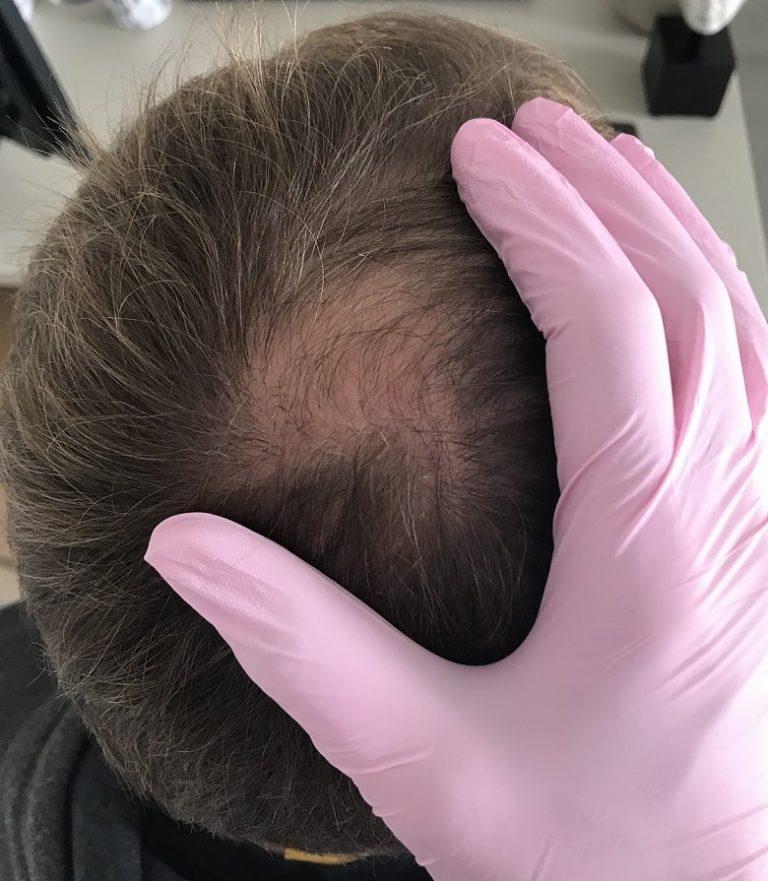 łysienie adrogenowe u mężczyzn bydgoszcz 2
