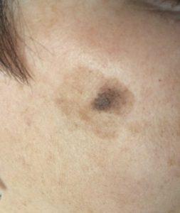 Diagnoza plamy soczewicowatej dermatologia Bydgoszcz