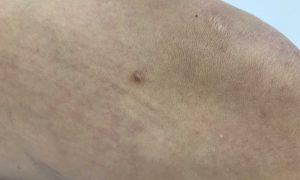 Postać włókniaka twardego dermatolog Bydgoszcz