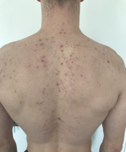 Objawy trądziku na plecach diagnoza dermatologia Bydgoszcz